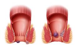 hemoroizi