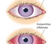 conjuctivita ochi- simptome si tratament