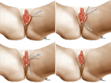 ingustarea vaginului